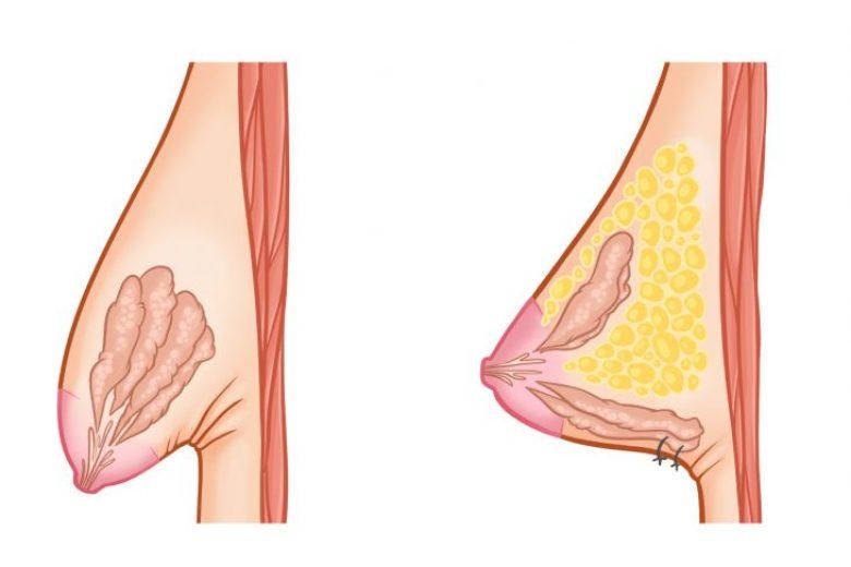 tubulaere-brust