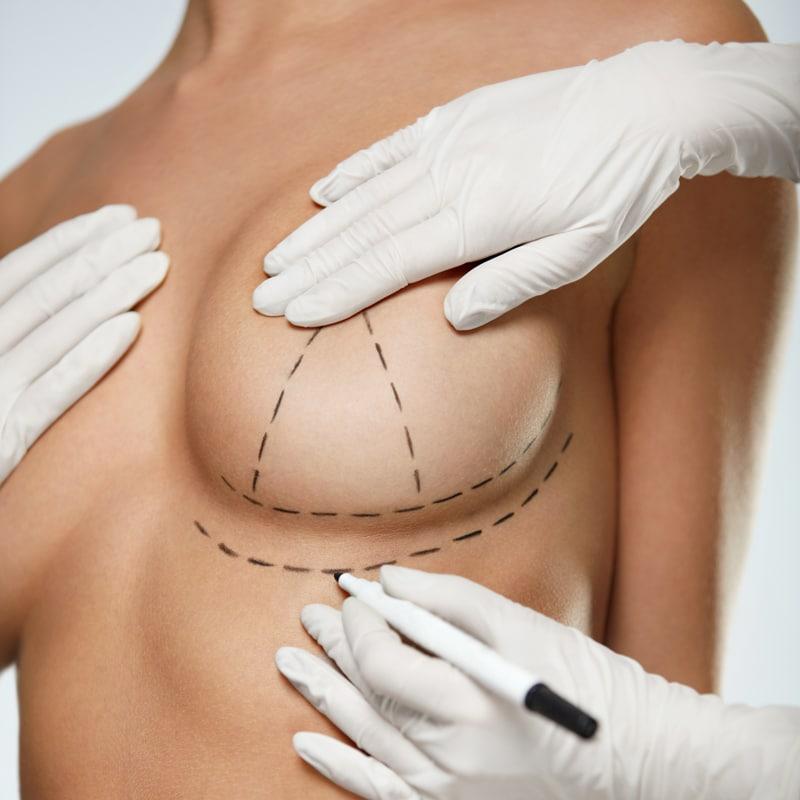 Bruststraffung: Methoden und Position der Narben